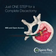 Just One Step for a Complete Discectomy - SpineView