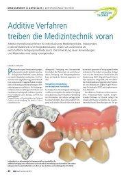 Additive Verfahren treiben die Medizintechnik voran - DeltaMed GmbH