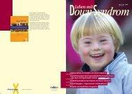 Schilddrüsenfunktion bei Kindern mit Down-Syndrom