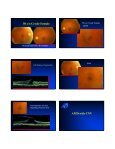 Optical Coherence Tomography (OCT) - Page 3