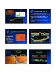 Optical Coherence Tomography (OCT) - Page 5