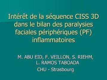 Intérêt de la séquence CISS 3D dans le bilan des paralysies faciales ...