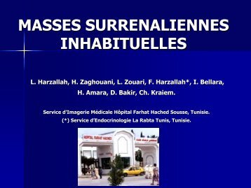 MASSES SURRENALIENNES INHABITUELLES