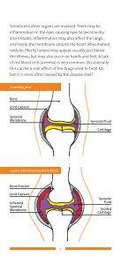 Rheumatoid Arthritis - Arthritis New Zealand - Page 4