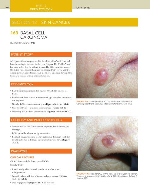 163 Basal Cell Carcinoma Section 12 Skin Cancer