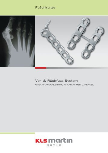 FOS OP-Anleitung (PDF 1.0 MB) - KLS Martin