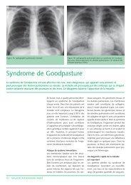 Syndrome de Goodpasture (143Kb) - CHUV