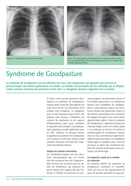 Syndrome de Goodpasture (143Kb) - CHUV