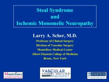 Steal Syndrome and Ischemic Monomelic Neuropathy - VascularWeb