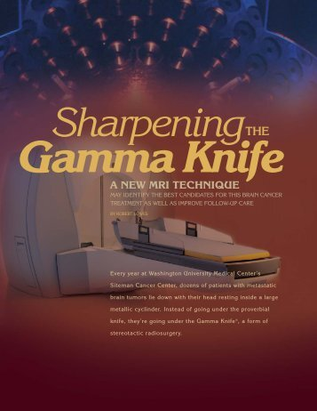 Sharpening the Gamma Knife - Mallinckrodt Institute of Radiology