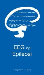 EEG og Epilepsi - Dansk Psykiatrisk Selskab