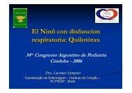 El Ninõ con disfuncion respiratoria: Quilotórax