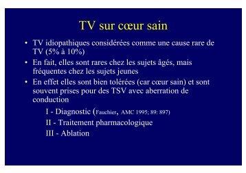 TV idiopathiques