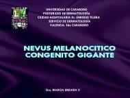 nevus melanocitico gigante.pdf - PIEL-L Latinoamericana