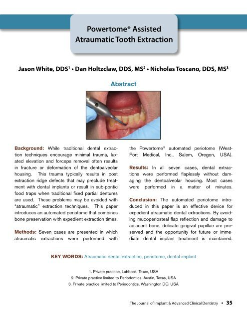Powertome® Assisted Atraumatic Tooth Extraction - Westport