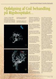 Opfølgning af Coil behandling på Rigshospitalet... - Foreningen af ...