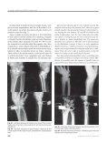 cav2003 rbo - Osvandré Lech Ortopedia - Page 6