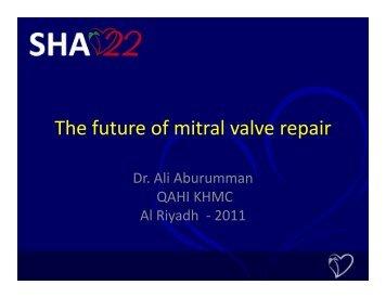 The future of mitral valve repair The future of mitral valve repair - Sha ...