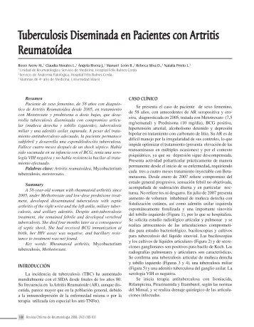 Tuberculosis Diseminada en Pacientes con Artritis Reumatoídea