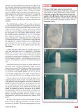 Functional and anatomic results of amnion vaginoplasty in young ... - Page 5