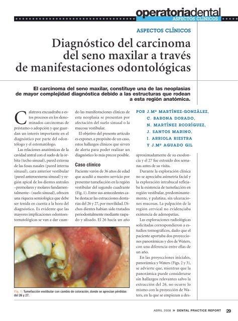 Diagnóstico del carcinoma del seno maxilar a través de ...