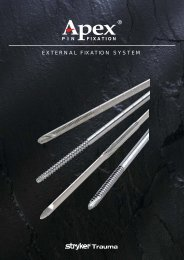 External Fixation Systems