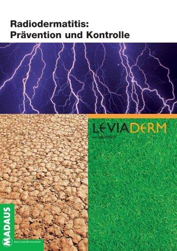 Radiodermatitis: Prävention und Kontrolle - Madaus