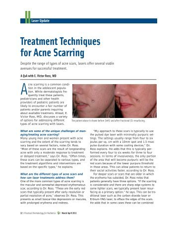Treatment Techniques for Acne Scarring