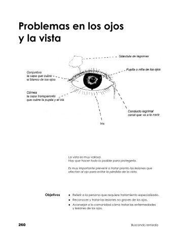 Problemas en los ojos y la vista - Bienvenidos a AIS Nicaragua