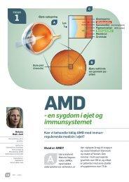 - en sygdom i øjet og immunsystemet - Øjenforeningen Værn om Synet