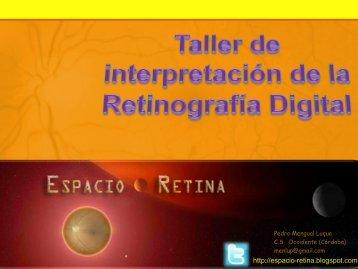 Interpretación de la Retinografía digital y F.O