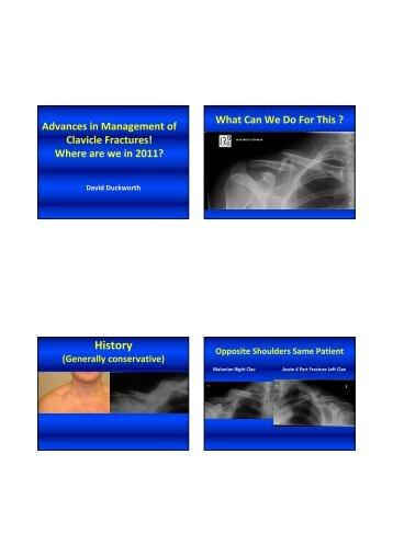 Clavicle Fracture Management - Dr David Duckworth