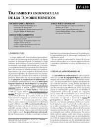 Terapia endovascular de los tumores hepáticos. - Sacd.org.ar