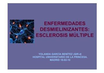Enfermedades desmielinizantes: esclerosis múltiple.