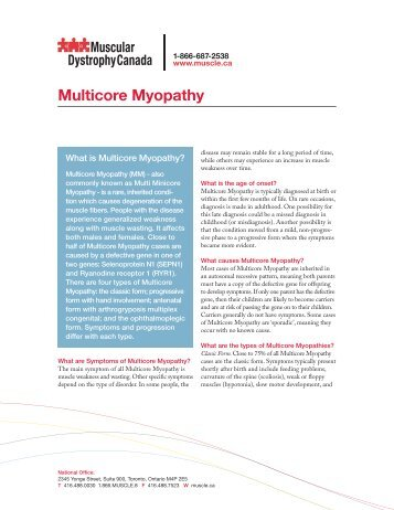 the muscular dystrophy canada Muscular dystrophy (md) is a group of hereditary muscle diseases md results in weakening the skeletal muscles of body the main traits of muscular dystrophy are progressive skeletal muscle weakness, defects in muscle proteins, and death of muscle cells and tissue.