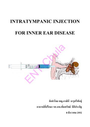 INTRATYMPANIC INJECTION FOR INNER EAR DISEASE