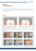 lighT-curing PosTerior resToraTive - dentes.sk - Page 3