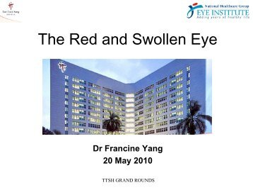 The Red and Swollen Eye - Teigrandround.com.sg