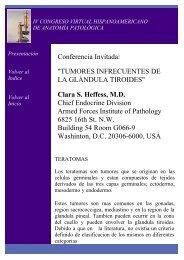 TUMORES INFRECUENTES DE LA GLÁNDULA TIROIDES