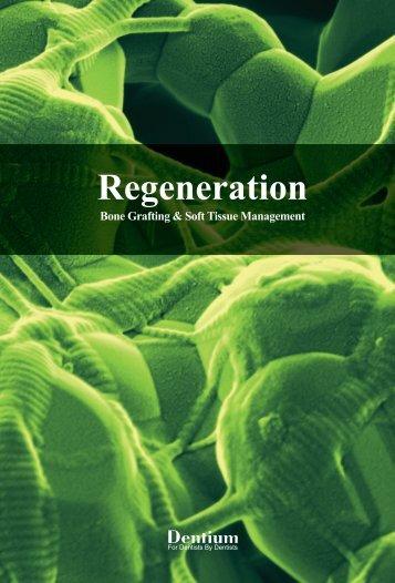 Regeneration - Dentium