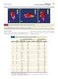 Noninvasive Identification of Ventricular Tachycardia ... - DIE - UPM - Page 6