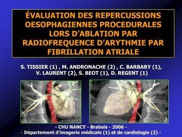 évaluation des repercussions oesophagiennes procedurales lors d ...
