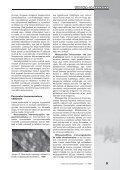 2009 Ringvaade nr.: 1 TEOORIA JA PRAKTIKA Nakkusohutusest ... - Page 7