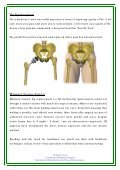 Minimally Invasive Big Ball Hip Replacement ... - BMI Healthcare - Page 3