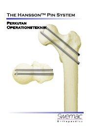 OP-teknik broschyr LIH, DAN 071123.pub - Osteosyntese