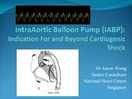 (IABP): Indication For and Beyond Cardiogenic Shock
