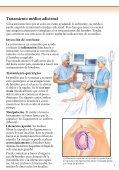 Hombro congelado Cirugía - Veterans Health Library - Page 5