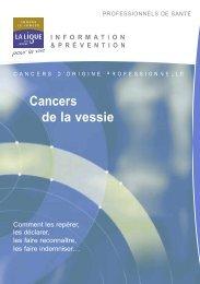 Cancers de la vessie - Ligue-cancer83.net