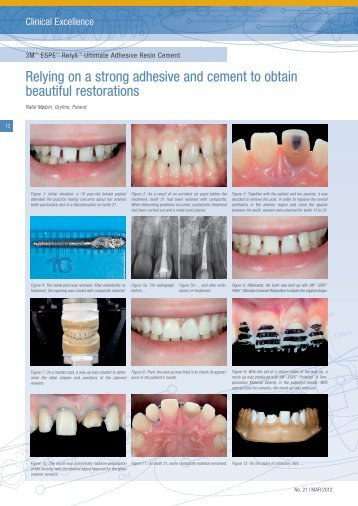 Relying on a strong adhesive and cement to ... - Dentinal Tubules