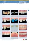 Relying on a strong adhesive and cement to ... - Dentinal Tubules - Page 2